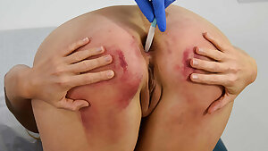 The Complete Treatment, part 2 - Slapping – Medical